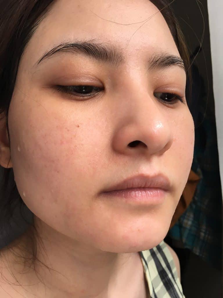 triệu chứng da sau 3 ngày điều trị